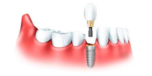 Сколько держаться импланты зубов